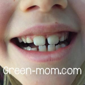 Kid's healthy teeth